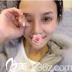 石家庄贵美人张宝成采用硅胶隆鼻手术给了我高颜值 术后恢复1个月变上镜女神