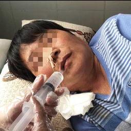 吞咽障碍患者的福音 我院成功开展 吞咽障碍 IOE 技术