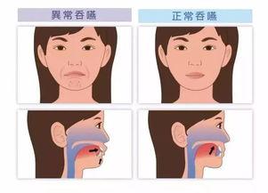 脑卒中后吞咽障碍的康复训练总结