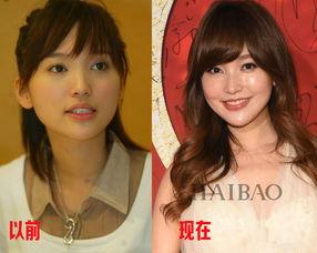 金莎承认整容去韩国做了个单眼皮已取代杨紫撞脸王地位