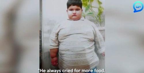 世界最胖男孩10岁近400斤饭量相当于四个成人