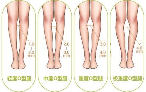 哪些方法可以矫正腿