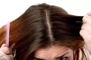 女生头皮屑突然增多(头皮屑突然多是什么原因)
