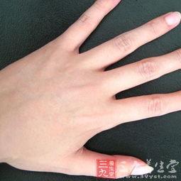 如何预防手指甲凹凸不平