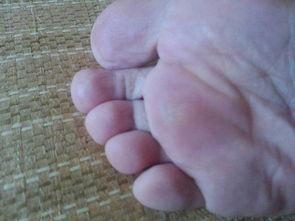 脚上长了一个硬硬的疙瘩