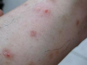 看图识病 据实例图片认识荨麻疹的症状
