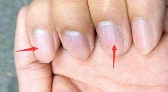 身体是否有疾病缠身,看手指甲上发的信号,多食这几样食物