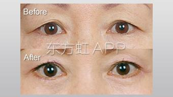 三角眼矫正的方法有哪些