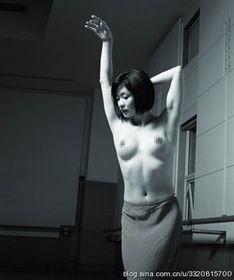 金星做变性手术时照片