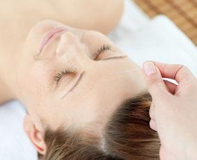 治疗这三类慢性头痛,一方见效!  民间治头疼的偏方大全