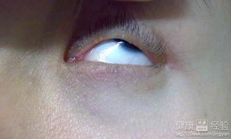 眼睛长麦粒肿或麦粒肿复发怎么办