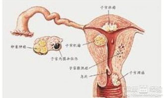 阴道出血是怎么回事