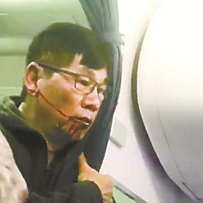 资料图:美联航被暴打亚裔乘客