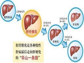 肝的位置图片(肝在什么位置图片)
