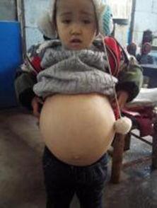 女童肚子鼓如球 随时有胀破危险 必须终身吃药