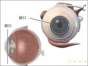 角膜 移植术 角膜移植术