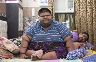 世界上最胖男孩减重成功体重曾超过237公斤