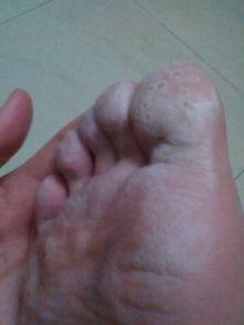 请问这个是足藓吗 脚气