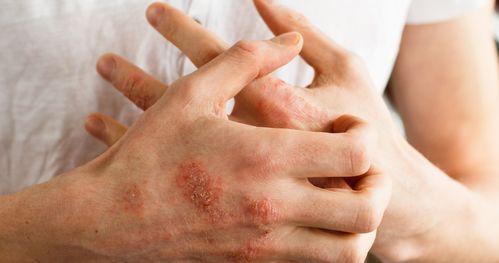 止痒消疹汤外洗治疗急性肛门湿疹40例