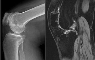 髌骨软化症的诊断及锻炼方法