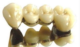 不同烤瓷牙材料有什么区别?