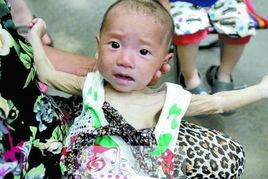 2名儿童随精神失常母亲流浪受饿 网友微博求救 组图 被找到的 饥饿娃娃 严重营养不良 流浪的母子三人在郑州火车站地区 新闻100