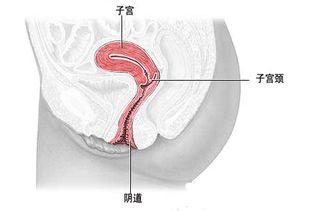 阴道尖锐湿尤图片