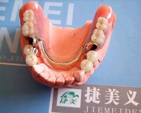 北京钛合金活动假牙的价格