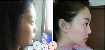 全脸脂肪填充恢复时间 鼻综合手术价格