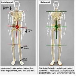 做完骨盆修复后可以练瑜伽吗