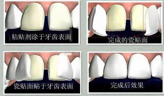 牙齿美学维护小常识